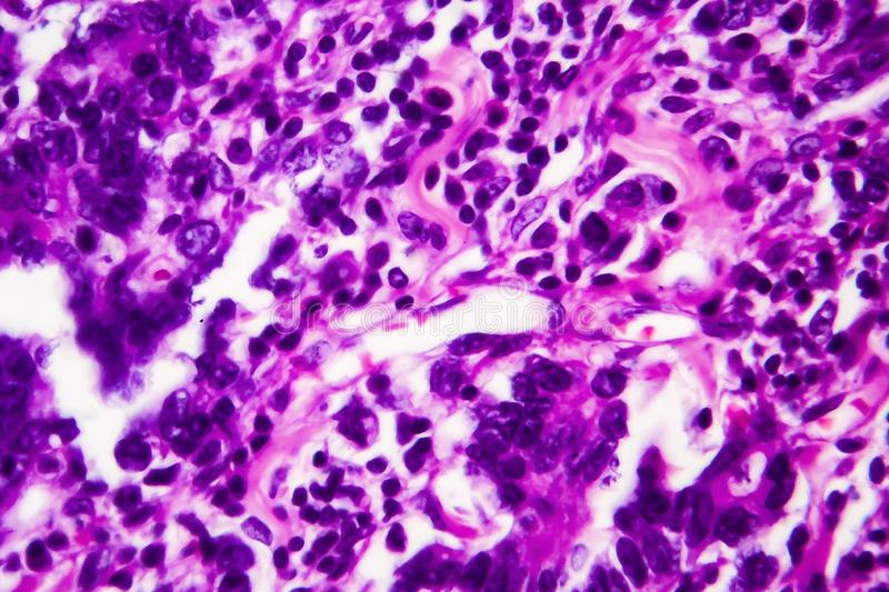 Gastric adenocarcinoma, light micrograph. Photo under microscope. High magnification stock photos