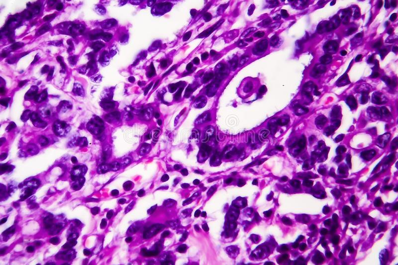 Gastric adenocarcinoma, light micrograph. Photo under microscope. High magnification royalty free stock photo