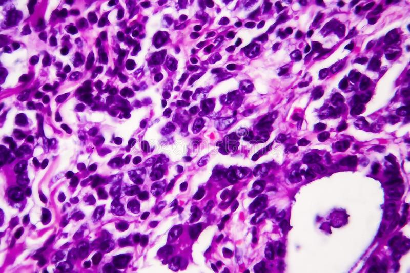 Gastric adenocarcinoma, light micrograph. Photo under microscope. High magnification royalty free stock images
