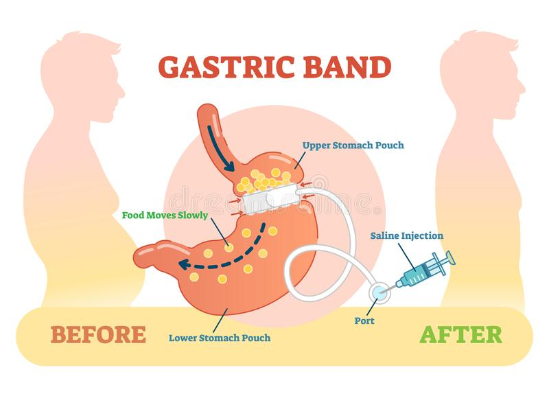 Gastric Band anatomical vector illustration diagram, medical before after scheme. Gastric Band anatomical vector illustration diagram vector illustration