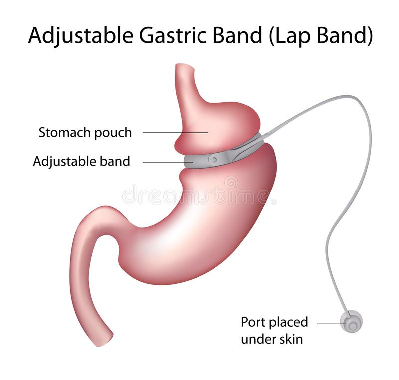 Gastric Band Weight Loss Surgery. Adjustable Gastric Band or Lap Band, one of the Weight Loss Surgery procedures, eps8 vector illustration