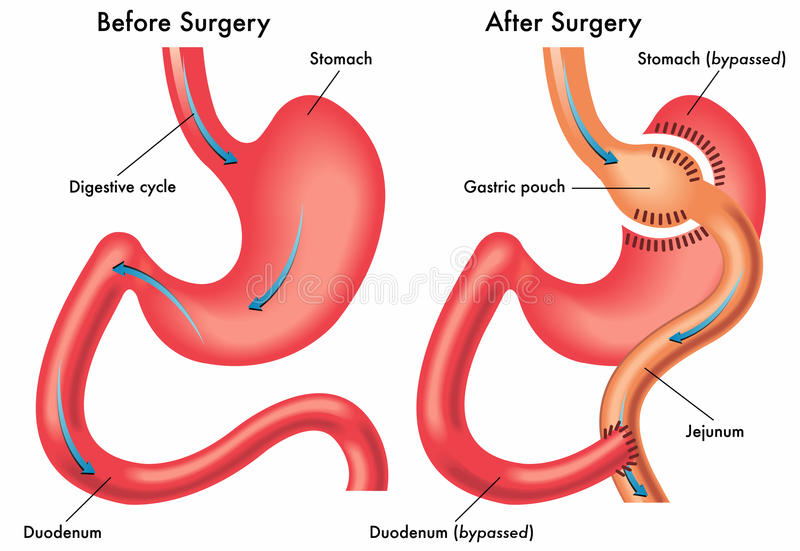 Gastric bypass royalty free illustration