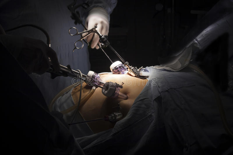 Gastric bypass surgery. Portrait of gastric bypass surgery in hospital stock image