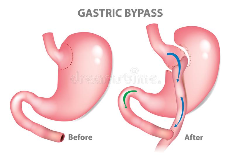 Gastric bypass surgery. RNY Roux-en-Y . MINI-GASTRIC BYPASS vector illustration