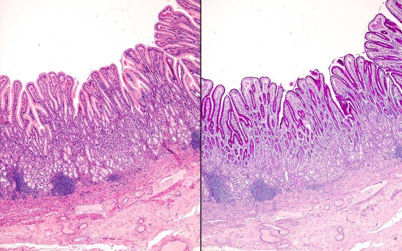 gastric mucosa Pyloric region fotografering för bildbyråer