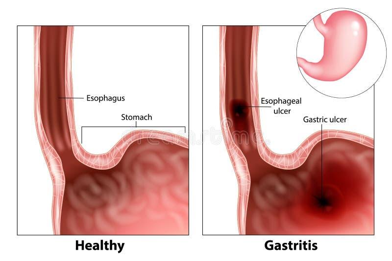 Gastrite e úlcera esofágica ilustração do vetor