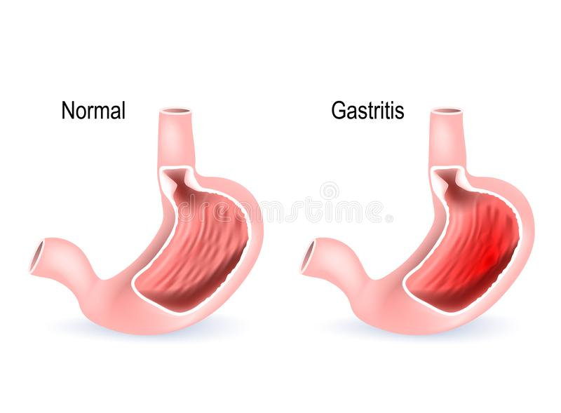 Gastritis. Cross section of two stomach royalty free illustration
