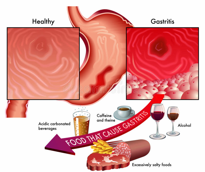 Gastritis vector illustration