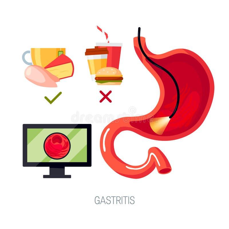 Gastritis poj?cie w mieszkanie stylu, ikona royalty ilustracja