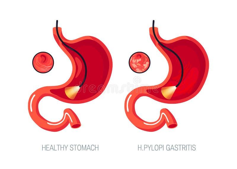 Gastritisconcept in vlakke stijl, pictogram stock illustratie