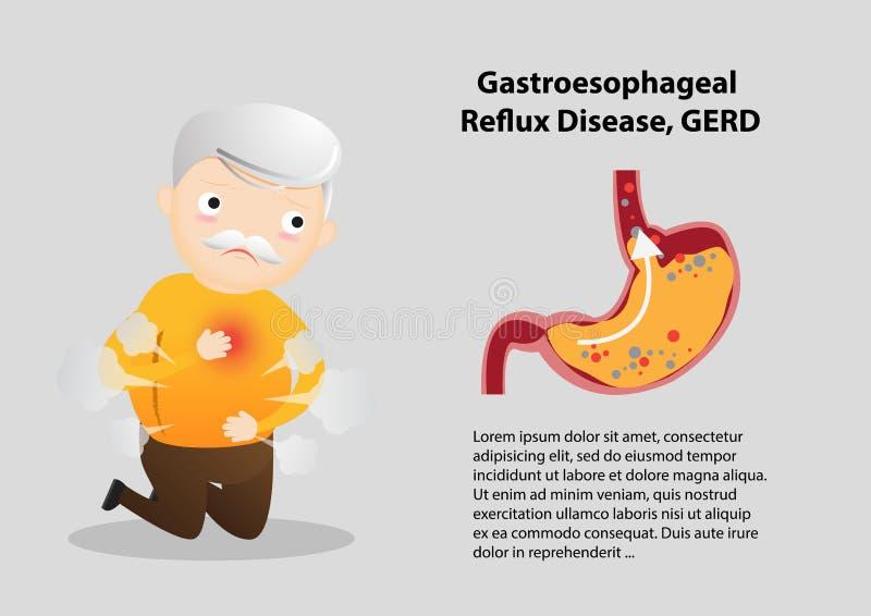 Gastro-Esophageal Reflux Disease GERD stock illustration