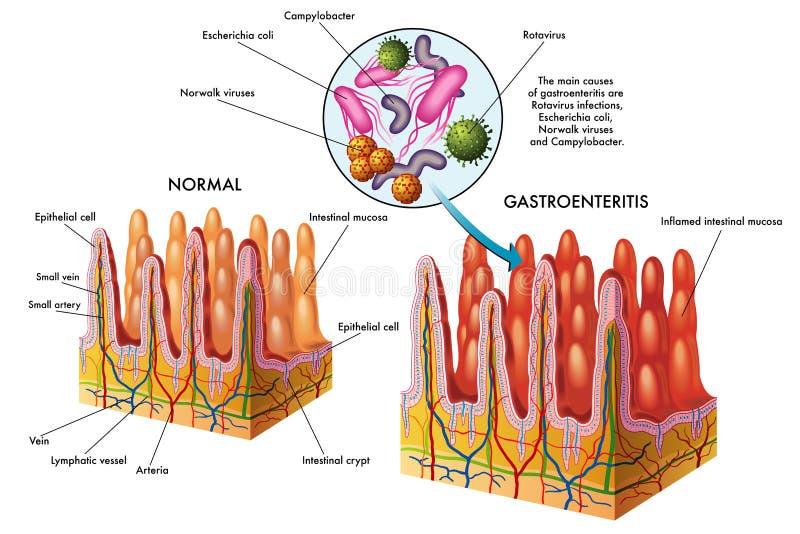 gastroenteritis royaltyfri illustrationer