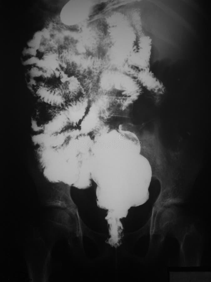 Gastrointestinali superiori (UGI) con portano a compimento lo studio di una donna di 21 anno, vista anteroposteriore. immagini stock libere da diritti