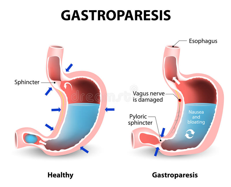 Gastroparesis illustration stock