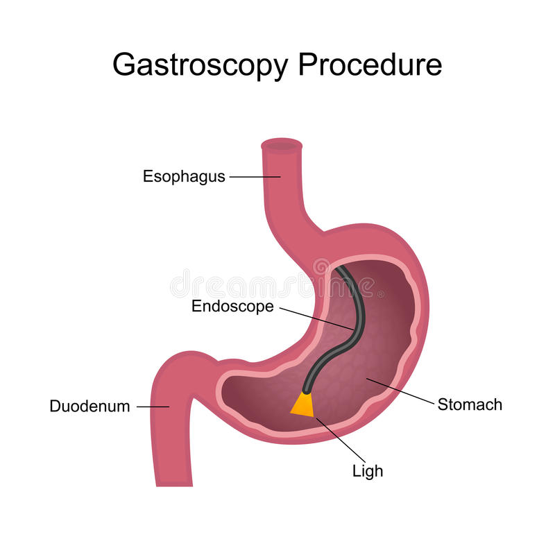 Gastroscopy Procedure Diagram Stock Vector - Illustration of ...
