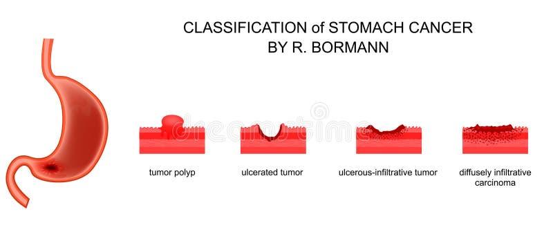Gatunkowanie żołądkowy nowotwór ilustracja wektor