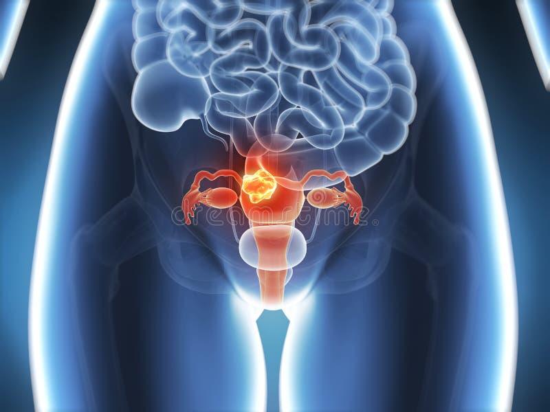 Gebärmutterkrebs lizenzfreie abbildung