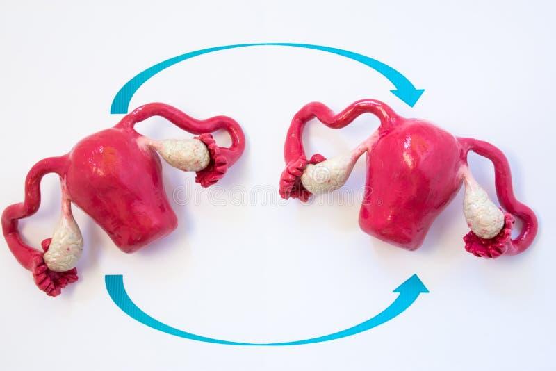 Gebärmutterversetzungs-Konzeptfoto Zwei anatomische Modelle Gebärmutter mit Eierstöcken mit dem Crossing over mit zwei Pfeilen, s lizenzfreie stockfotos