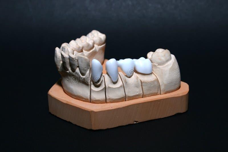 Gebiss/Tanden stock afbeeldingen