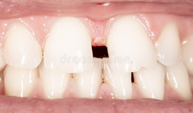Gebogen tanden in een man mond stock fotografie