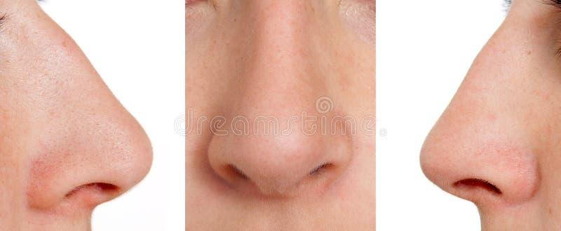 Gebogene Nase stockbilder