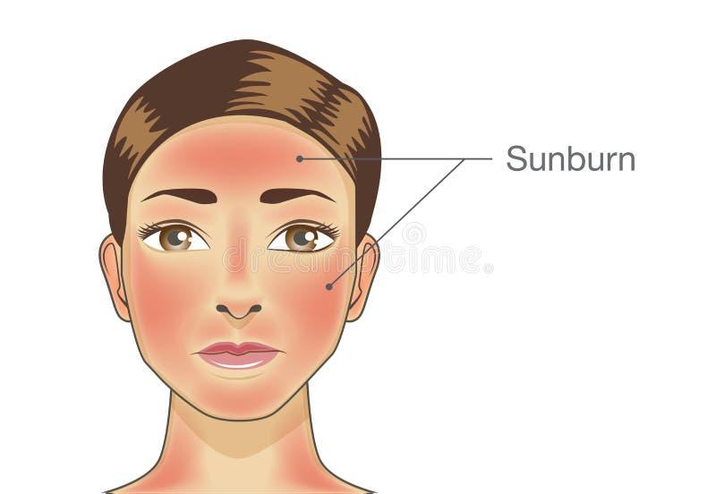 Gebrannte Haut auf Gesichtsbehandlung der Frau und des Halses stock abbildung