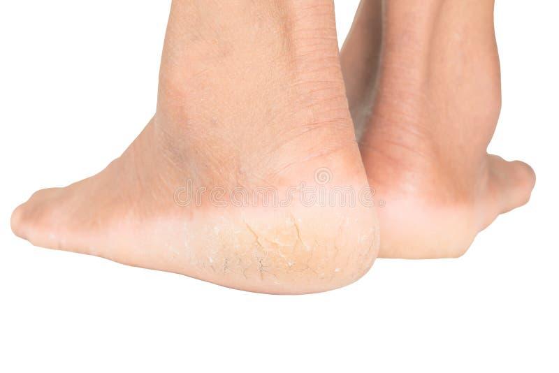 Gebrochene Füße und Haut der gebrochenen Fersen lizenzfreie stockbilder