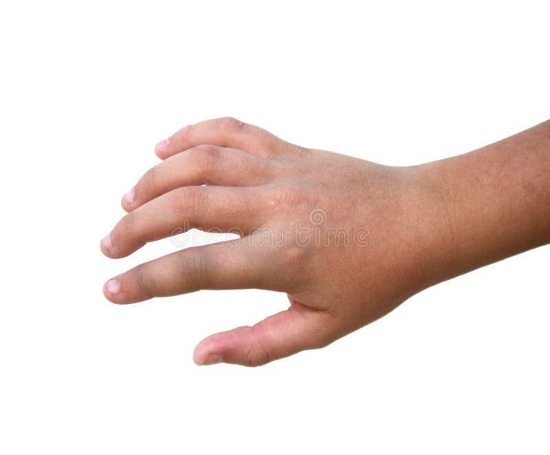 Gebrochener Finger lizenzfreies stockbild