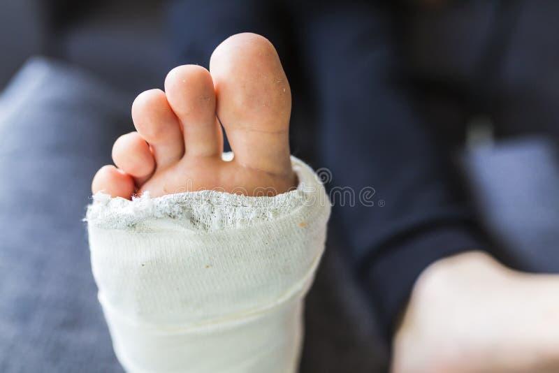 Gebrochenes Bein in einer Form während der Behandlung stockfotos