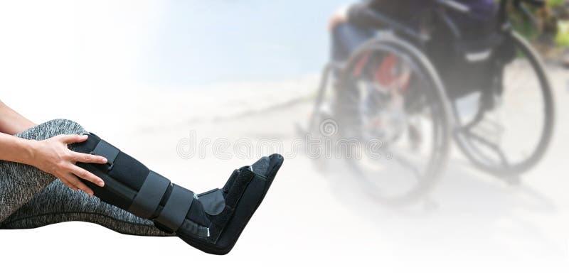 gebrochenes Bein, kurze Beinform, Schiene für Behandlung des verletzten woma lizenzfreie stockbilder