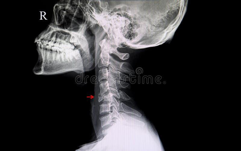 gebroken cervicale stekel stock afbeeldingen