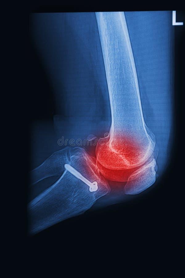 Gebroken de knieverbinding van röntgenstralen beeld met implant stock foto