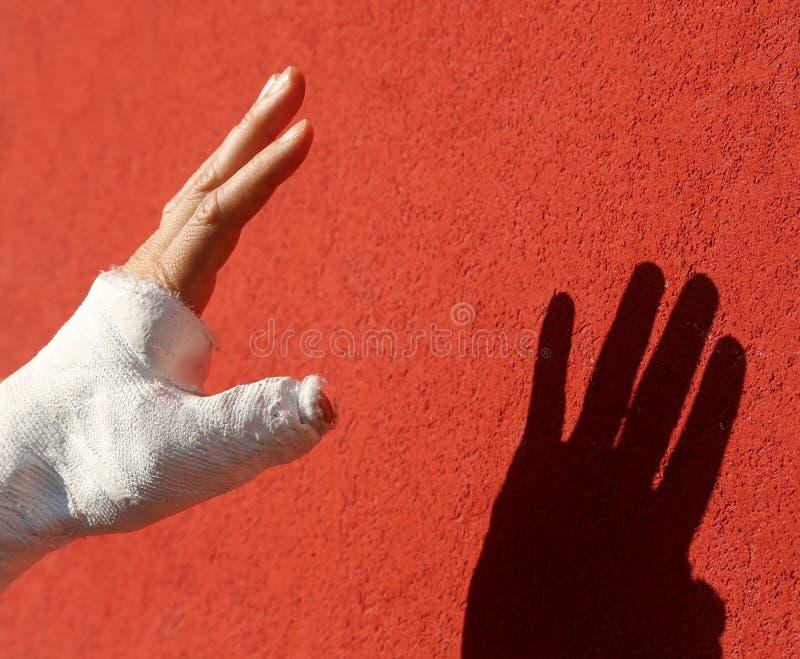 Gebroken hand en het gipsverband bij het ziekenhuis en de elft stock foto