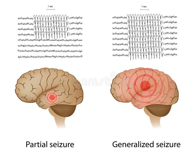 Gedeeltelijke en algemene epilepsie vector illustratie