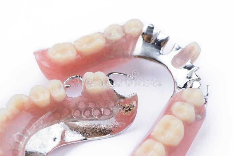Gedeeltelijke gebit hogere kant op een witte achtergrond stock foto