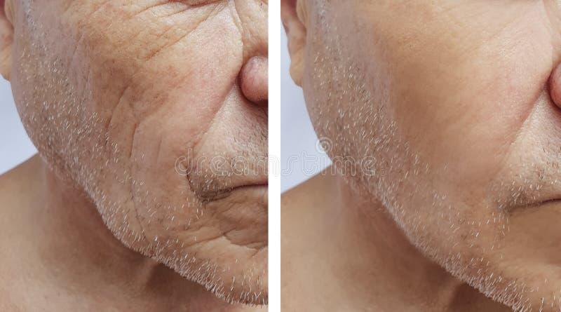 Geduldige Stirn des älteren im Gesichtmannes knittert Effektmedizin-Therapiegesicht der Einspritzung antiaging vor und nach Verfa stockfoto