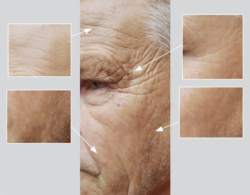 Geduldige Stirn des älteren im Gesichtmannes knittert Effektmedizin-Therapiegesicht vor und nach Verfahren lizenzfreies stockfoto