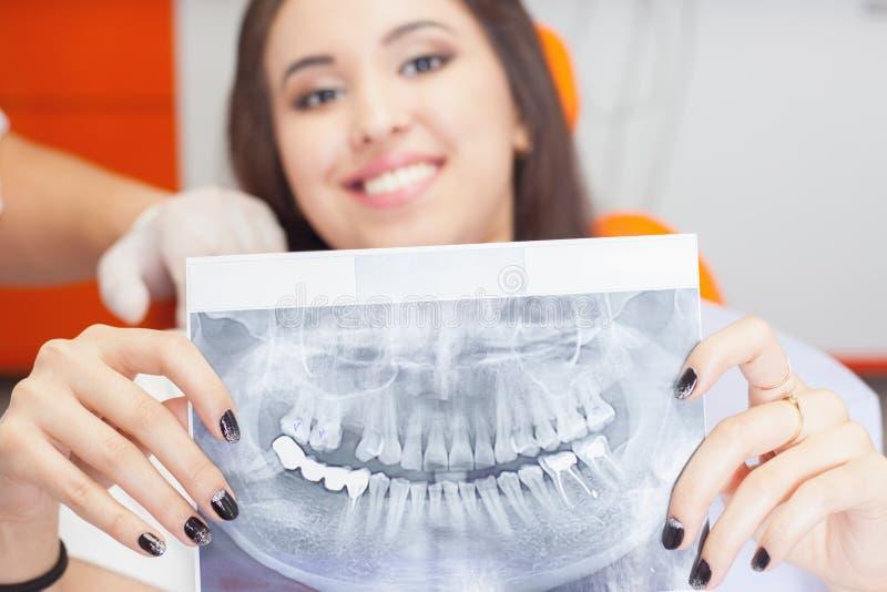Geduldiges schönes Mädchen, das Röntgenstrahlbild ihrer Zähne hält lizenzfreie stockfotos