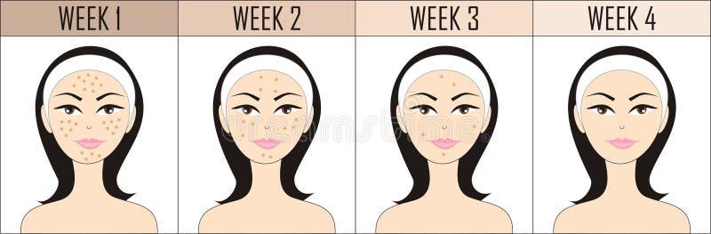 Geen acne royalty-vrije illustratie