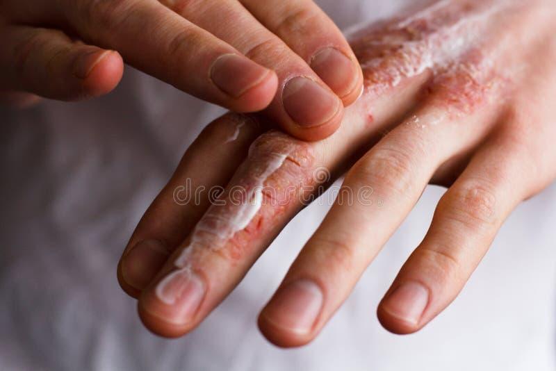 Geerntetes Bild eines jungen Mannes, der mit Sahne Feuchtigkeitscreme auf seine Hand mit sehr trockener Haut und tiefen den Sprün stockfotografie