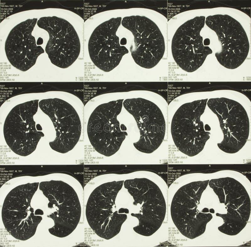 Gegevens verwerkte lichaamstomografie van borst stock afbeeldingen