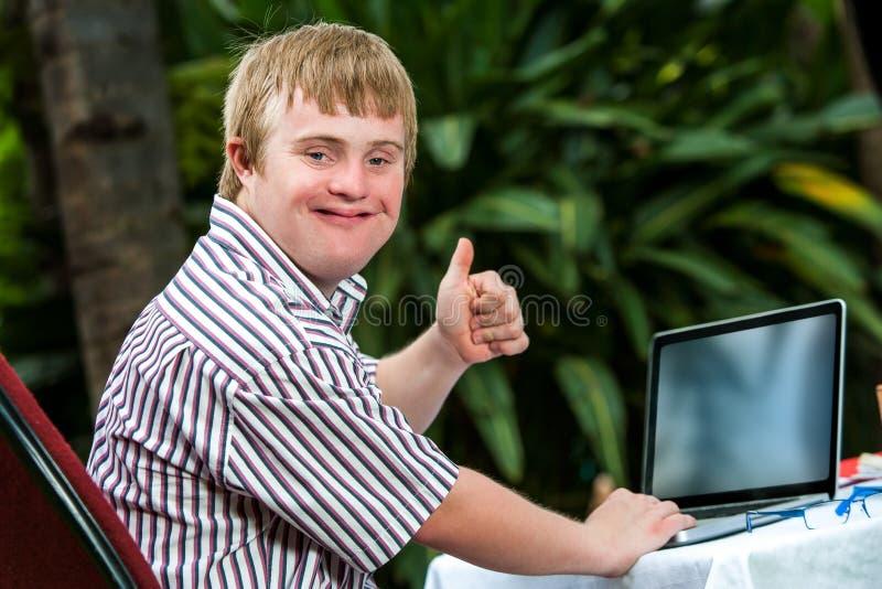 Gehandicapte student die aan laptop werken royalty-vrije stock afbeelding