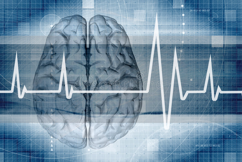 Gehirn-Überwachungsgerät lizenzfreie abbildung