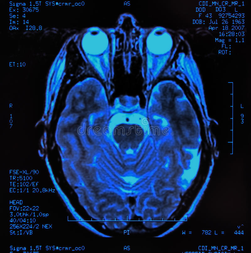 Gehirn MRI stockbild. Bild von kopf, tomographie, scan - 23696953