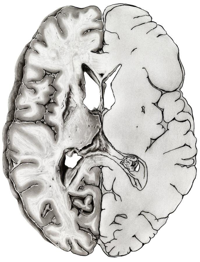 Nett Anatomie Des Gehirns Ct Bilder - Anatomie Ideen - finotti.info