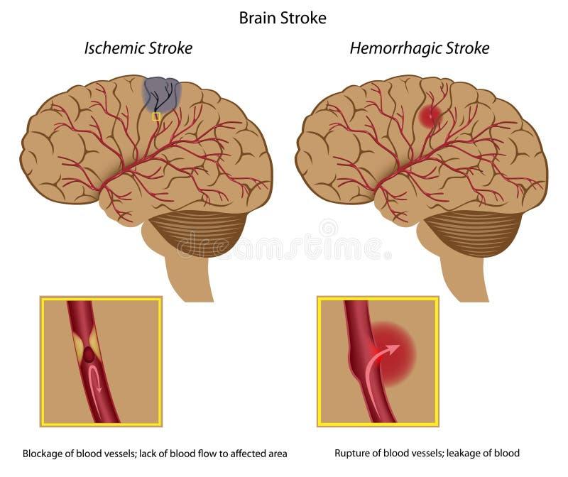 Gehirnanschlag stock abbildung