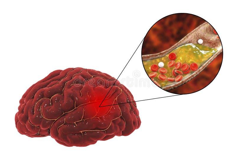 Gehirnanschlagkonzept stock abbildung