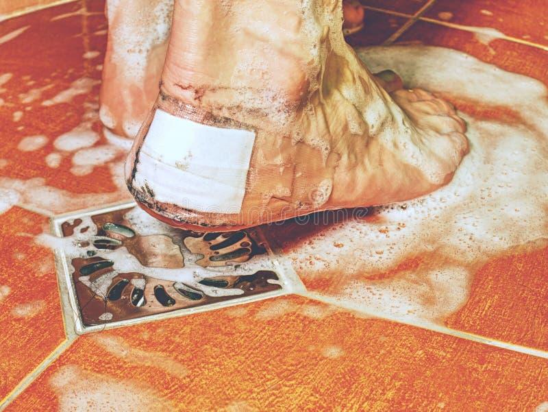 Gekwetst foott met wit flard op hiel Natte voeten stock fotografie