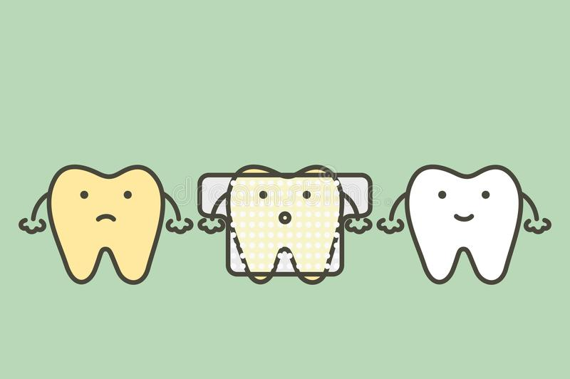 Gele tand gebruikte tanden die strook witten royalty-vrije illustratie