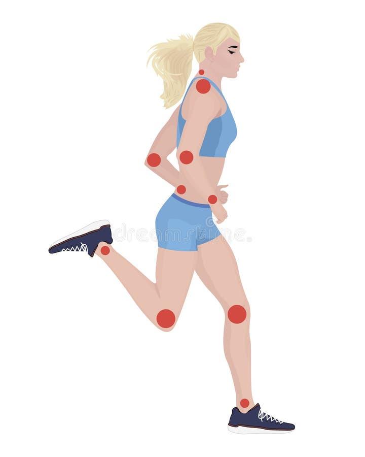 Gelenkschmerzen von angestecktem oder der Verletzung weiblichem Körper lizenzfreie abbildung